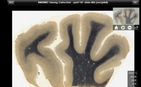 Einstein'ın Beyni iPad uygulaması oldu