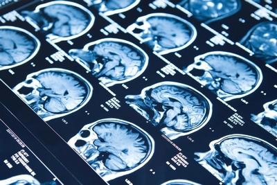 """Beyin proteinleri, """"kalıplar"""" epilepsiyi anlamak için ipuçları veriyor"""